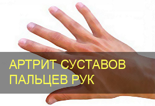 Мазь артрит рук в руки фото