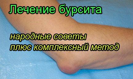 народные средства при лечении артрита коленного сустава
