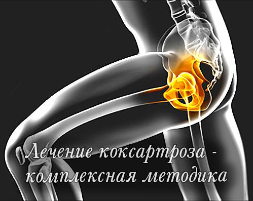 Метод лечения коксартроза