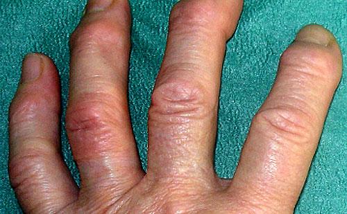 Почему хрустят суставы на руках повреждение вращательной манжеты правого плечевого сустава