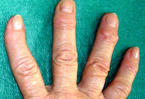 Артрит пальцев на руках 1
