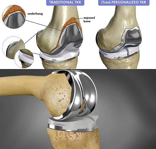 Искусственный коленный сустав