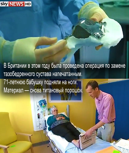 Пожилой женщине имплантировали тазобедренный сустав