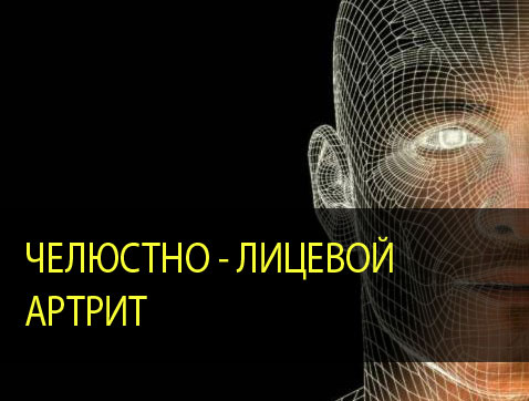 Челюстно-лицевой артрит