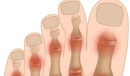 средство для лечения суставов пальцев ног