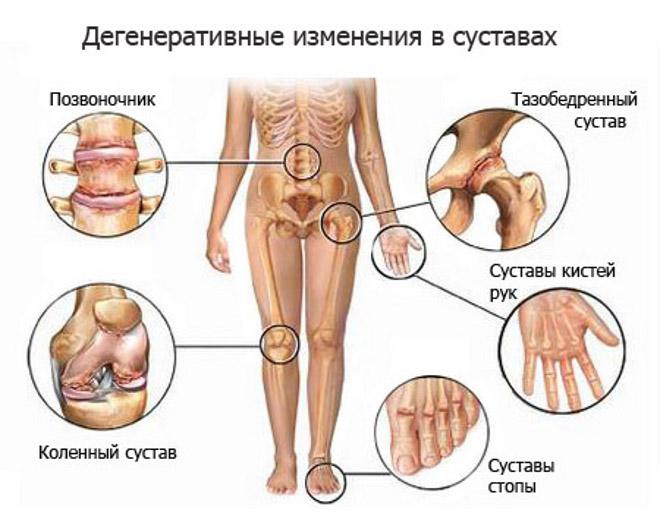 Дегенеративный артрит - как проявляется