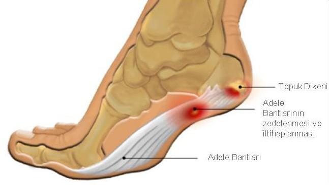 Пяточный артритм