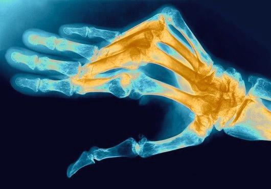 Пораженные артритом суставы на руках