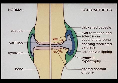 Нормальный и пораженный артритом сустав