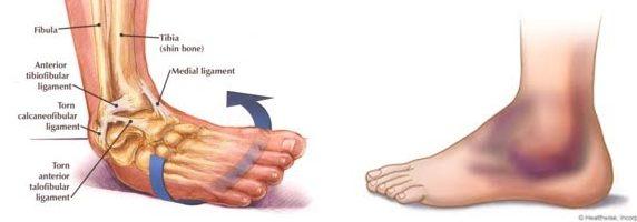 Пример растяжения голеностопного сустава